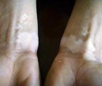 肢端型白癜风不好治是什么原因